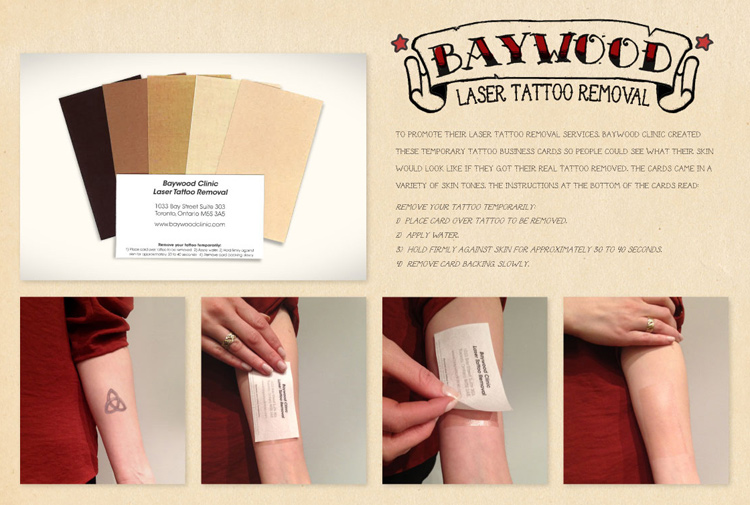 Baywood Clinic Laser Tattoo Removal service business card