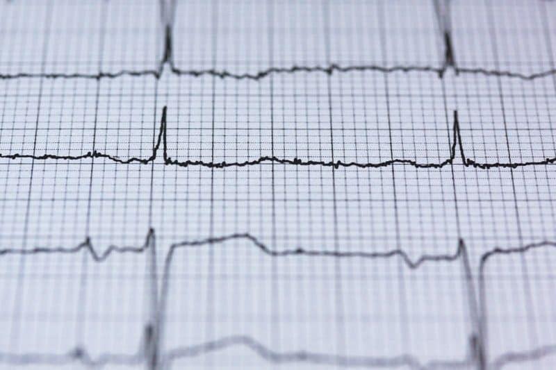 heart chart curve