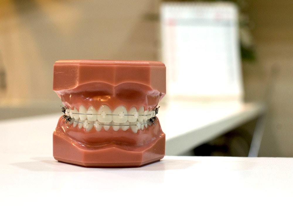 braces on fake plastic teeth