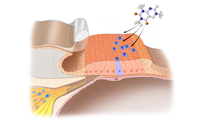 Stem cell therapy for hearing loss